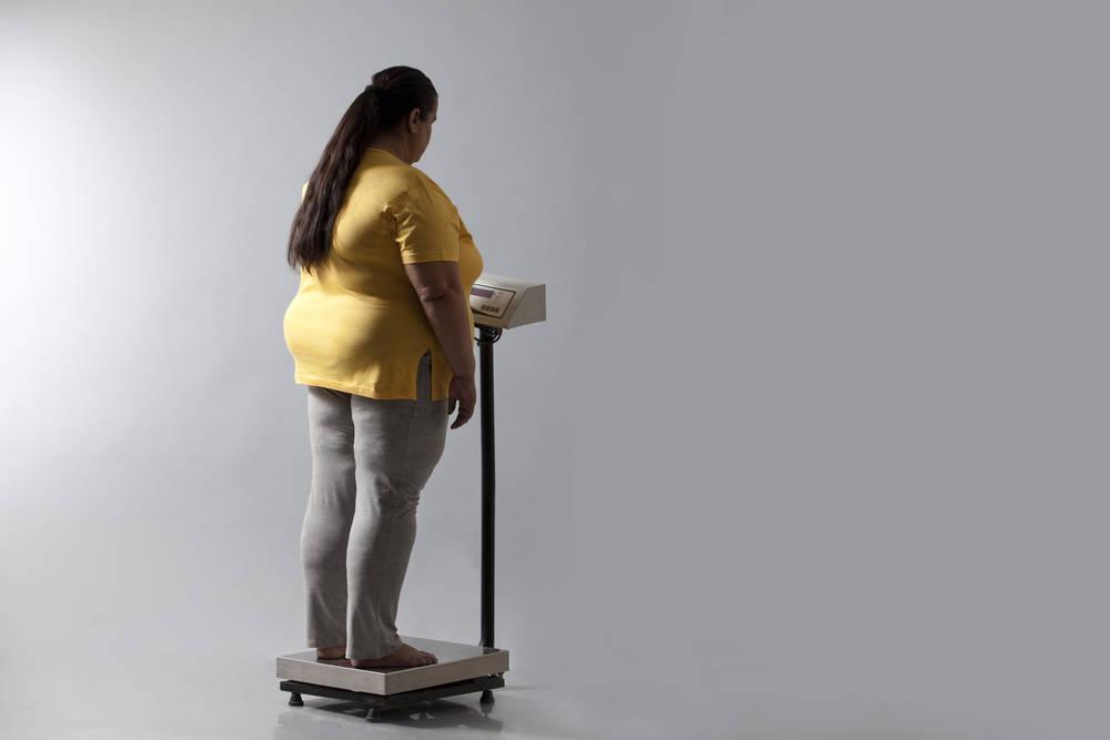Cuando la obesidad se convierte en un problema