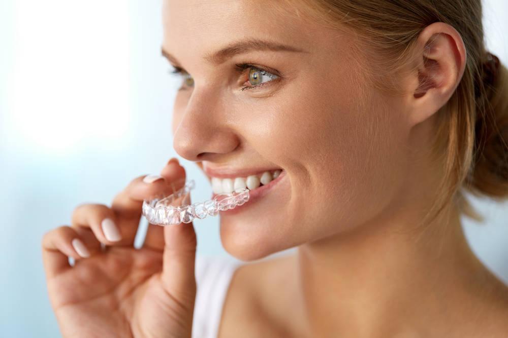 Todo lo que deberías saber sobre la ortodoncia