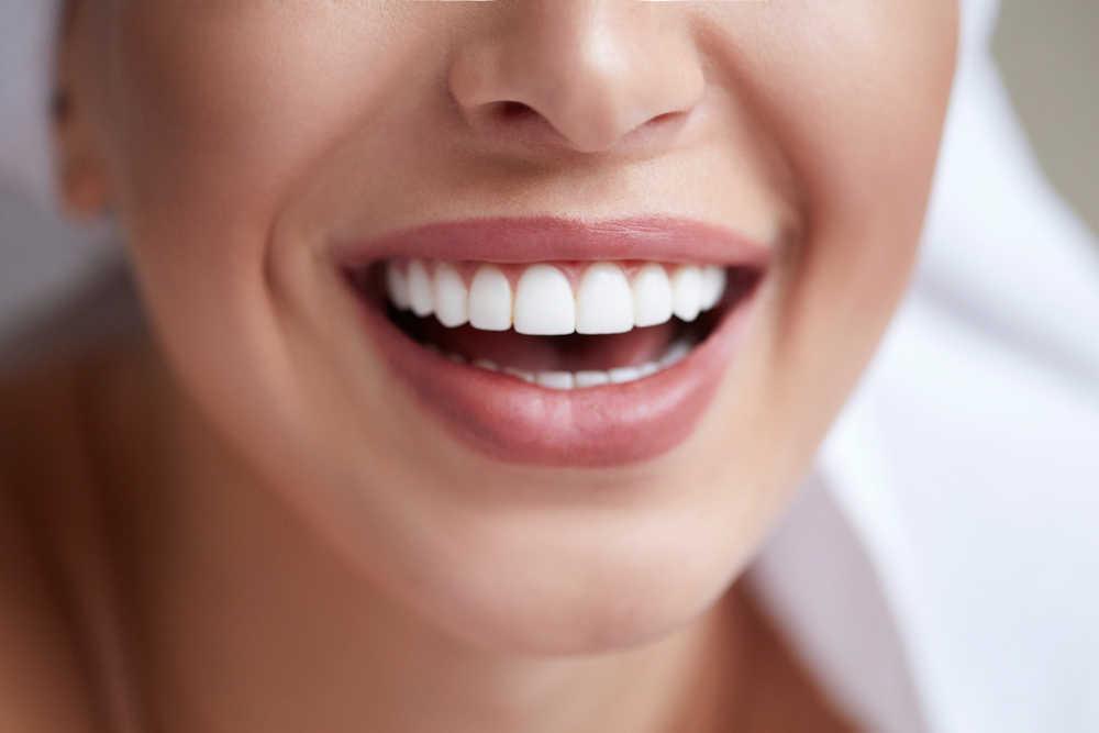 Estética dental y salud bucodental